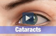 Cataract Surgery Cost in Singapore